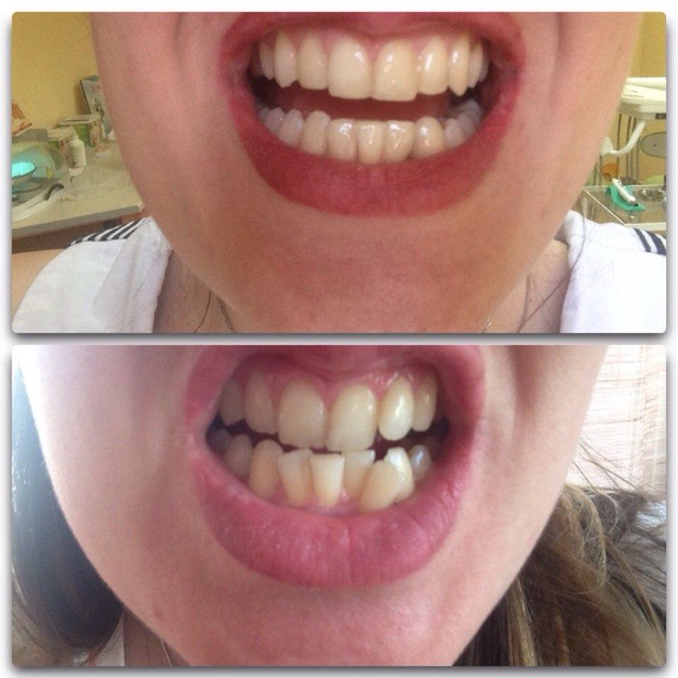 135Виниры на нижние зубы отзывы